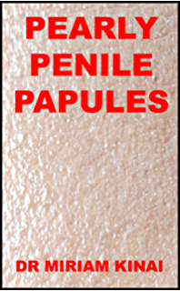 how to remove pearly penile papules at home
