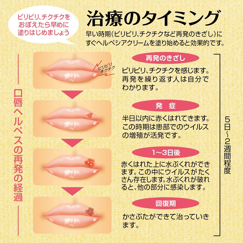 ヘルペス 薬 唇 市販