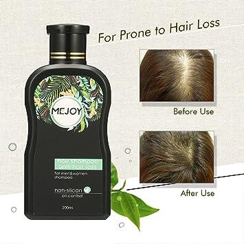 Champú Anticaída para la caída del cabello, YFM shampoo natura estimula el crecimiento del cabello para Hombres y Mujeres 200 ml