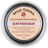 Scar Fade Balm. Reduces Appearance of Stretch Marks Acne Scars Age Spots Dark Spots Sun Spots & Surgical Scars. Hydrates and Moisturizes Skin while supporting natural tone color texture and wellbeing.