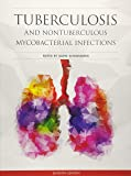 Tuberculosis and Nontuberculous Mycobacterial Infections