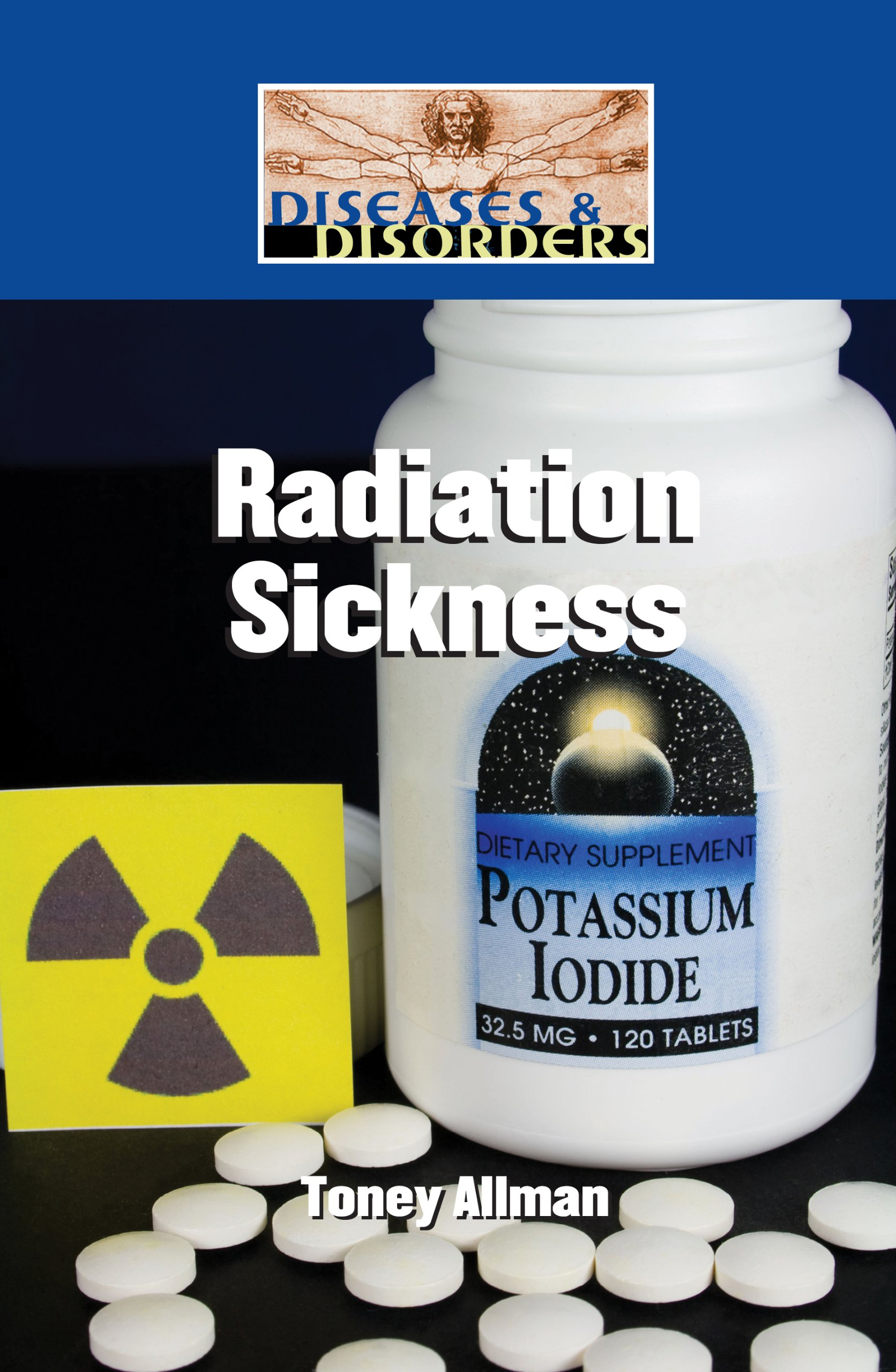 Radiation Sickness (Diseases and Disorders) pdf