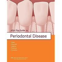 ADA Flip Guide to Periodontal Disease (ADA Flip Guides)