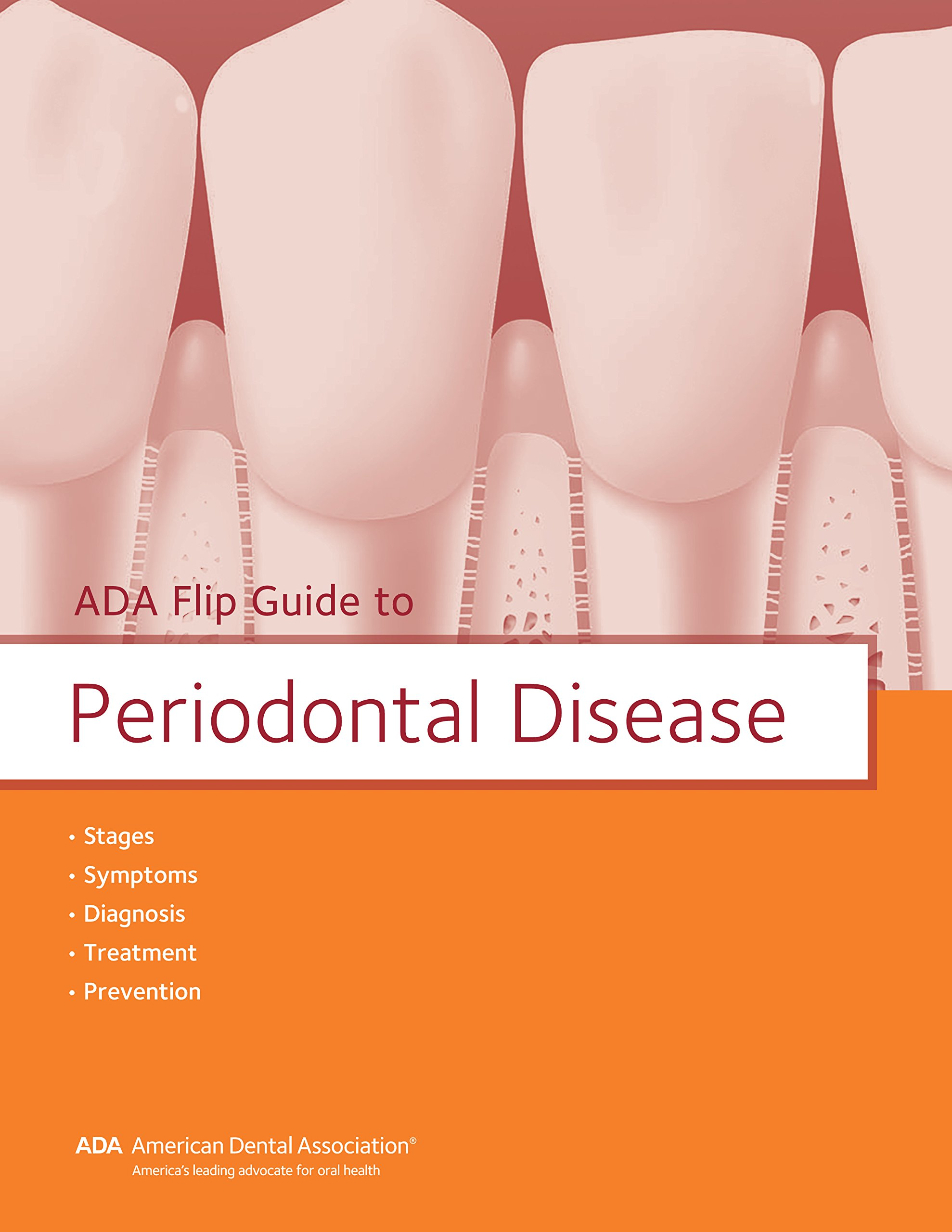 ADA Flip Guide to Periodontal Disease (ADA Flip Guides)