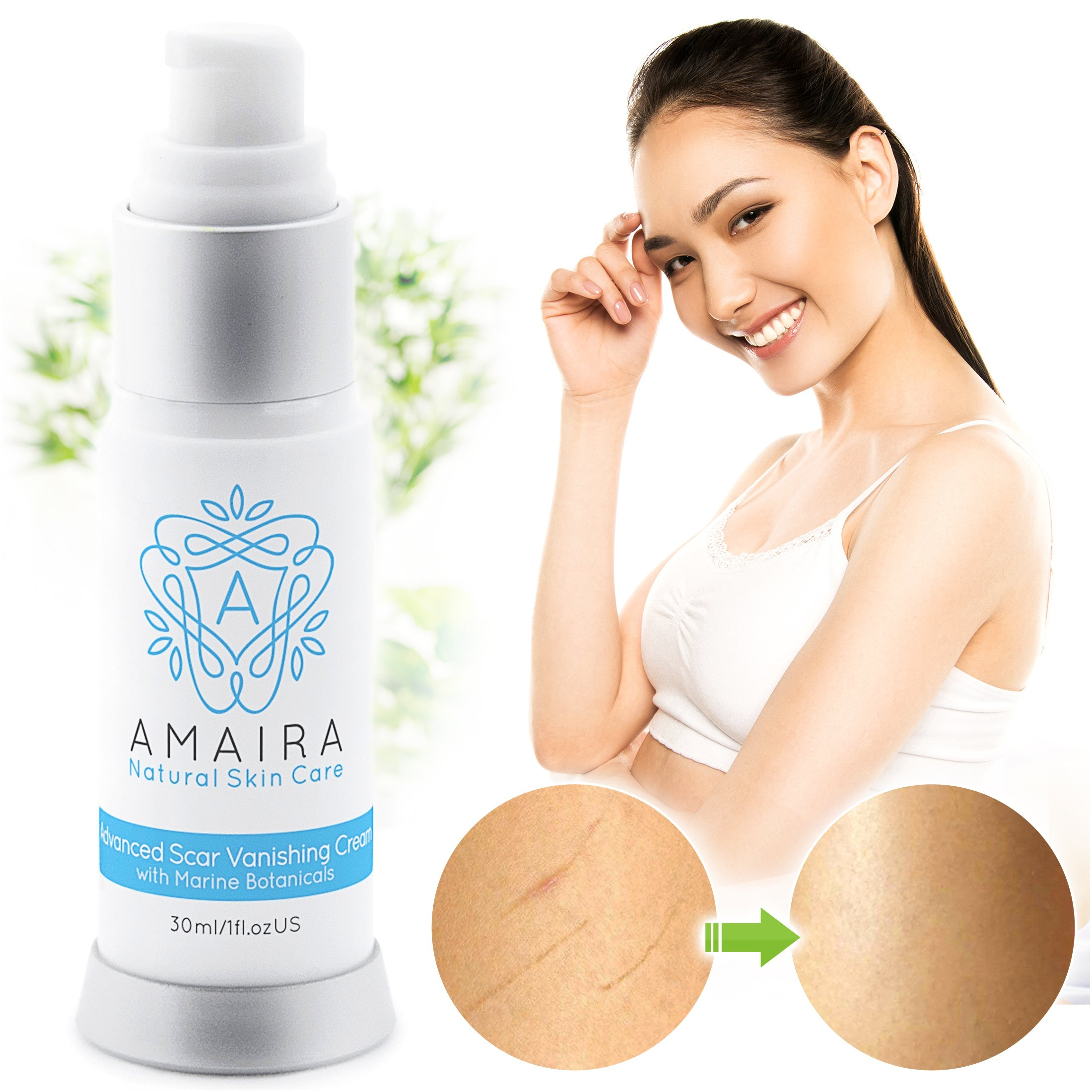 Amaira Advanced Scar Cream – Scientifically Proven Stretch Mark, Surgery, Burn & Acne Scar Remover Treatment – Premium Blemish Fade Removal for Men & Women