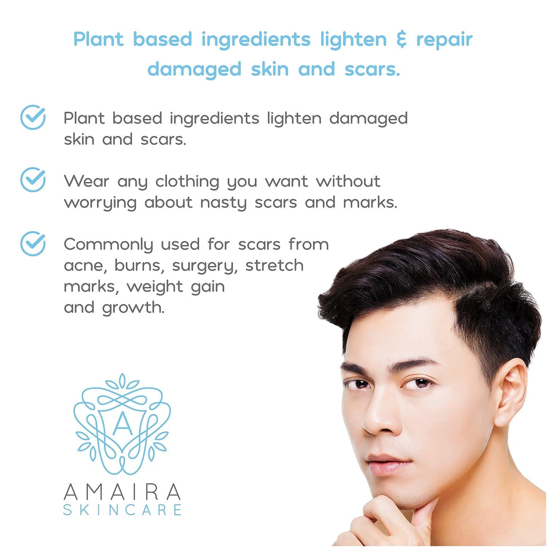 Amaira Advanced Scar Cream Scientifically Proven Dana A Acne Treatment Device Stretch Mark Surgery Burn Remover Premium Blemish Fade Removal For