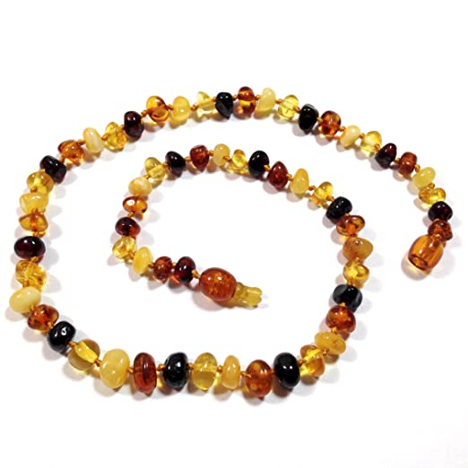 "Hazelaid (TM) 14"" Pop-Clasp Baltic Amber Multicolored Necklace"