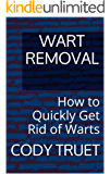 Wart Removal: How to Quickly Get Rid of Warts