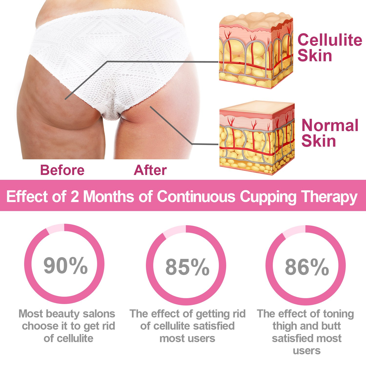 How to get rid of cellulite - instructions for lazy