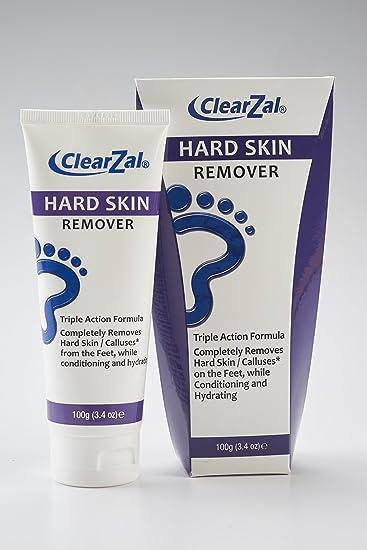 foot cream for hard skin