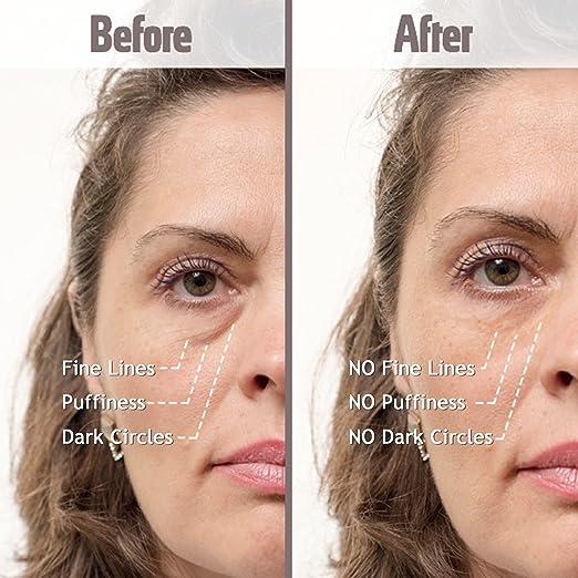 Amazon.com: Tratamiento Puffy Eye Resultados instantáneos ...