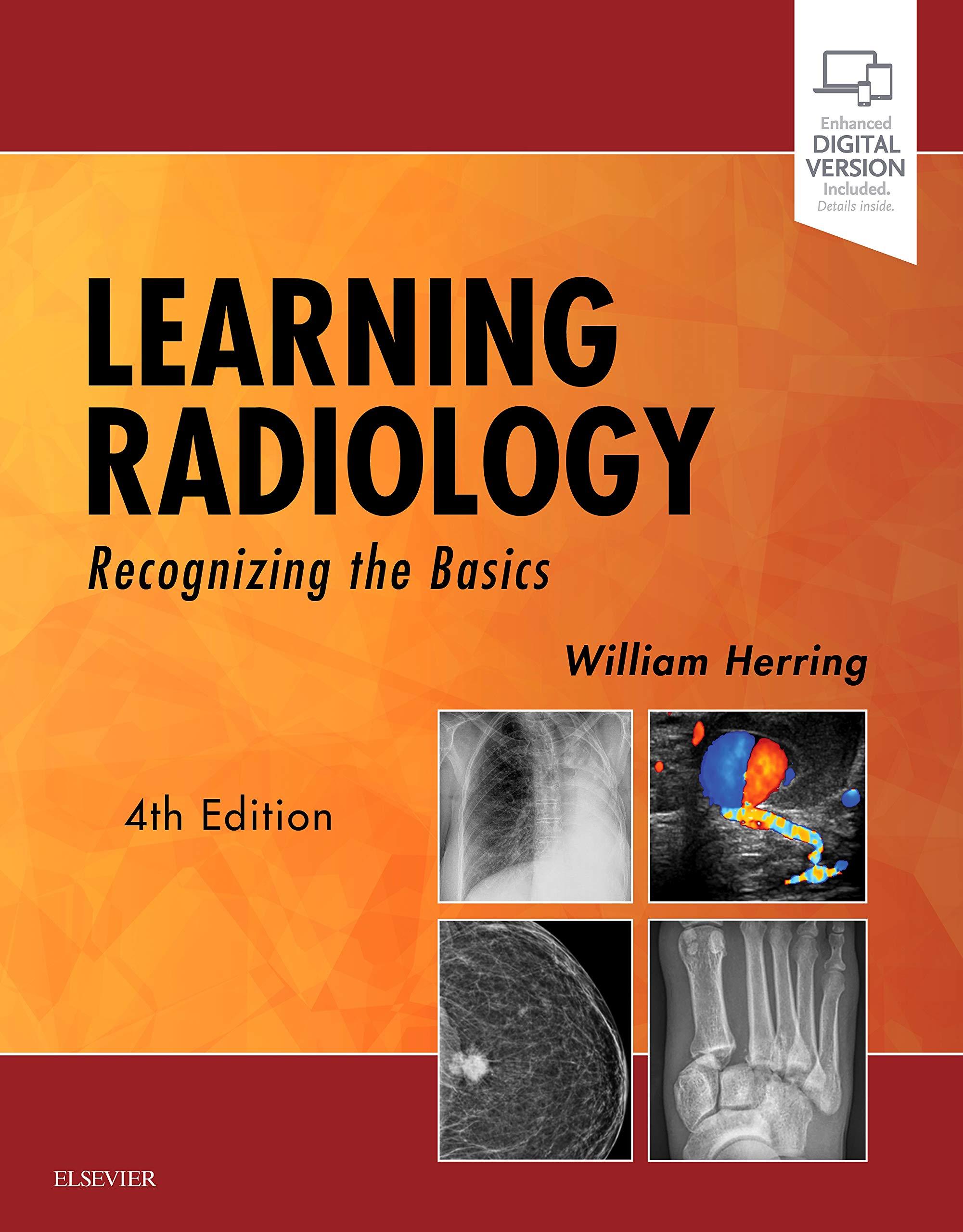 Learning Radiology  Recognizing The Basics