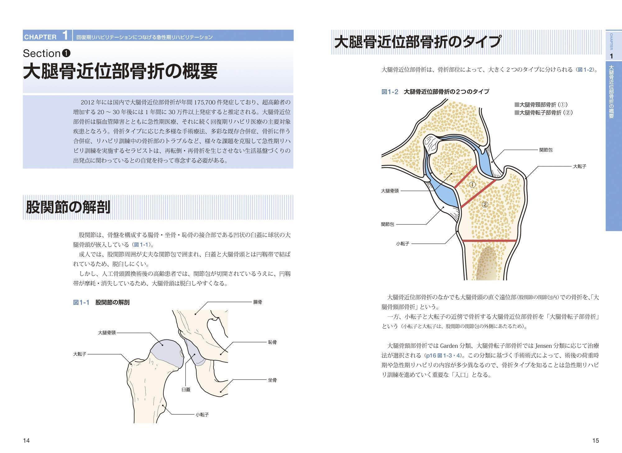 禁忌 位 骨 大腿 頸 骨折 部 肢