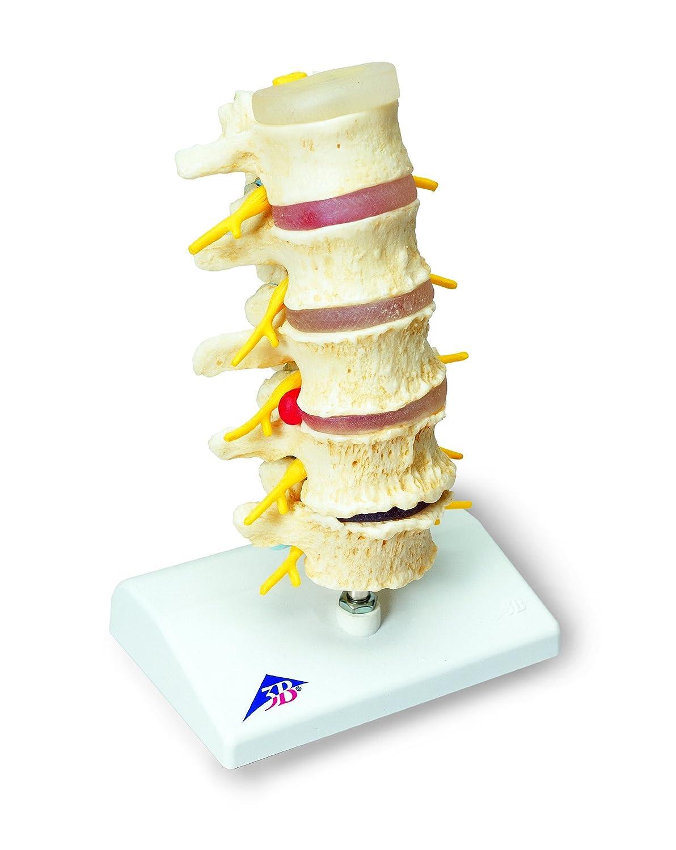 椎間板ヘルニアと変形性脊椎症モデル   B007NCUFWG