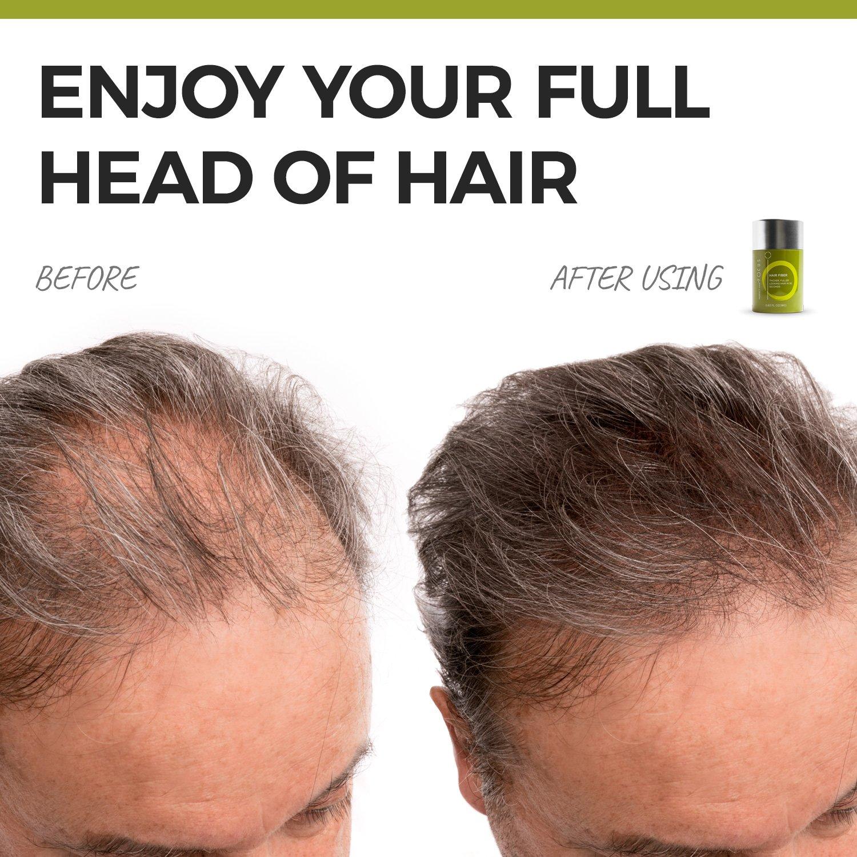 Hair Powder for Thinning Hair – Instant Root Concealer Hides Thin Hair Scalp Shine in Under 30 Seconds – Wind Sweat Resistant – 60g 2.12oz Dark Brown