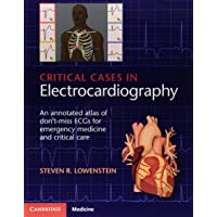 Critical Cases in Electrocardiography: An Annotated Atlas of Don't-Miss ECGs for Emergency Medicine and Critical Care