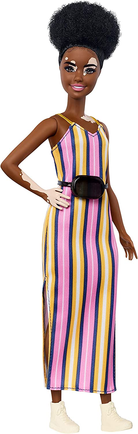 Barbie Fashionistas Doll #135 with Vitiligo and Curly Brunette Hair Wearing Striped Dress and Accessories, for 3 to 8 Year Olds [Amazon Exclusive]