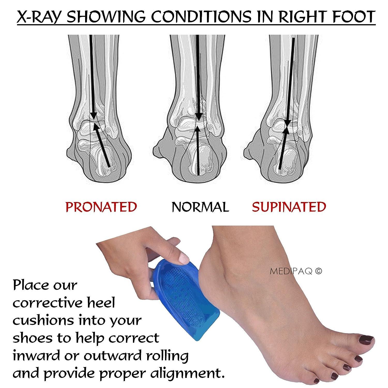 Medipaq Posture Correcting Gel Heel Levelling Supports - Angled ...