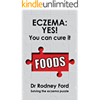 Eczema: Yes! You Can Cure It: Foods – the missing piece. 10 steps to solve the eczema puzzle.