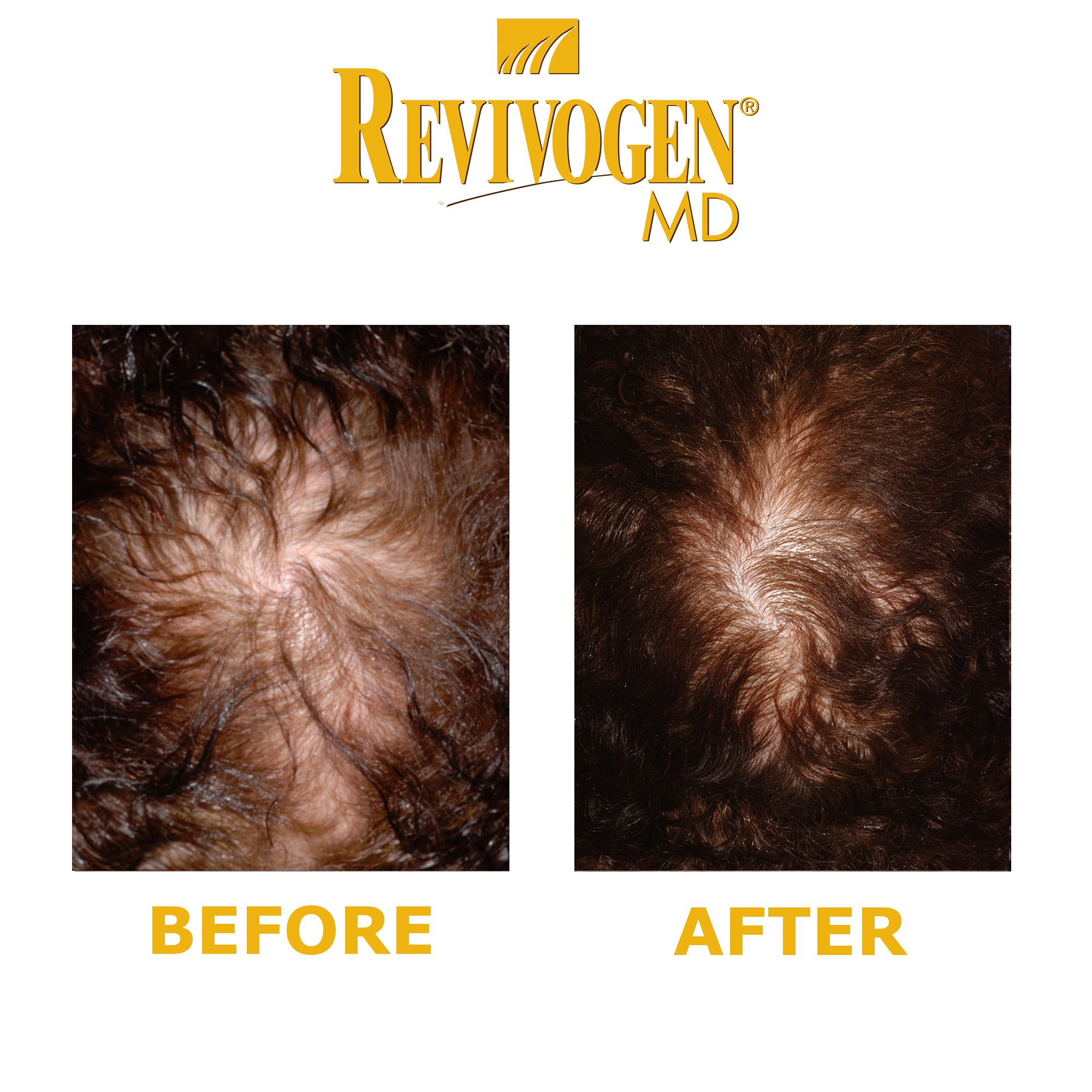 Revivogen Scalp Therapy MD (3 month supply) by Revivogen MD (Image #3)
