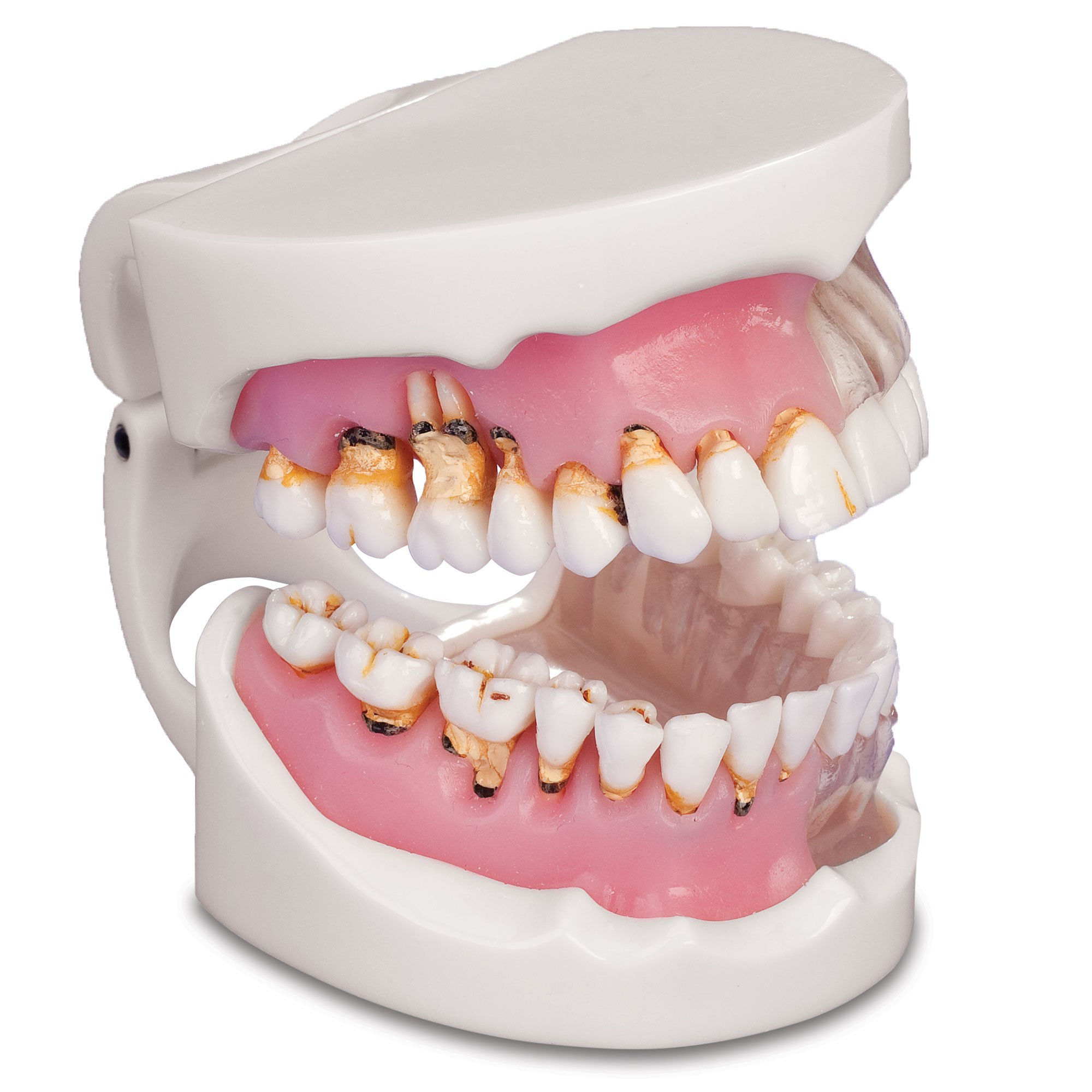Practicon 4112128 Pathological Gingivitis Model