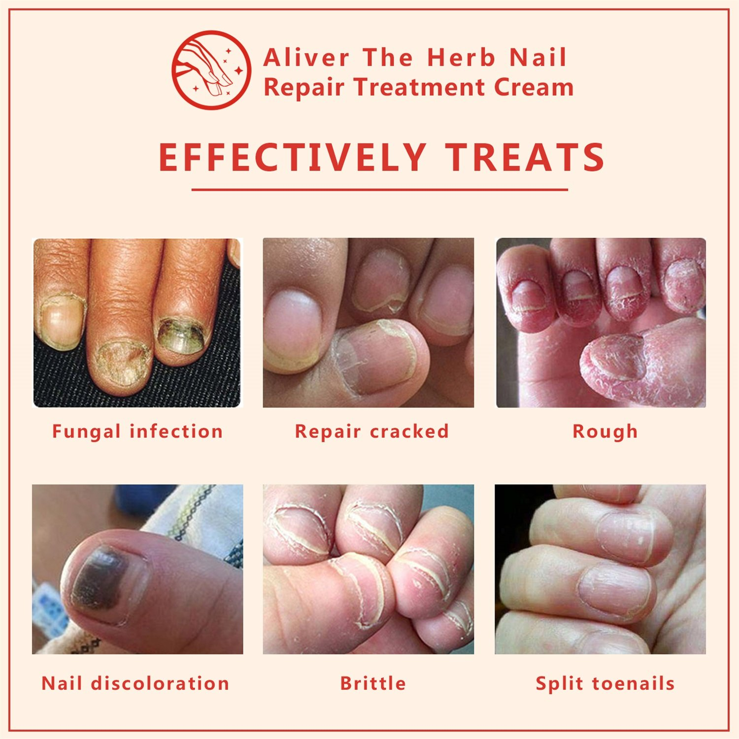 Nail Fungal Treatment, Aliver The Herb Foot Nail Repair Cream Protector, Nail Care Treatment of Anti-Fungal Cream, Effective Against Nail Fungus, Restores the Healthy Appearance of Nails (15g) by ALIVER (Image #4)