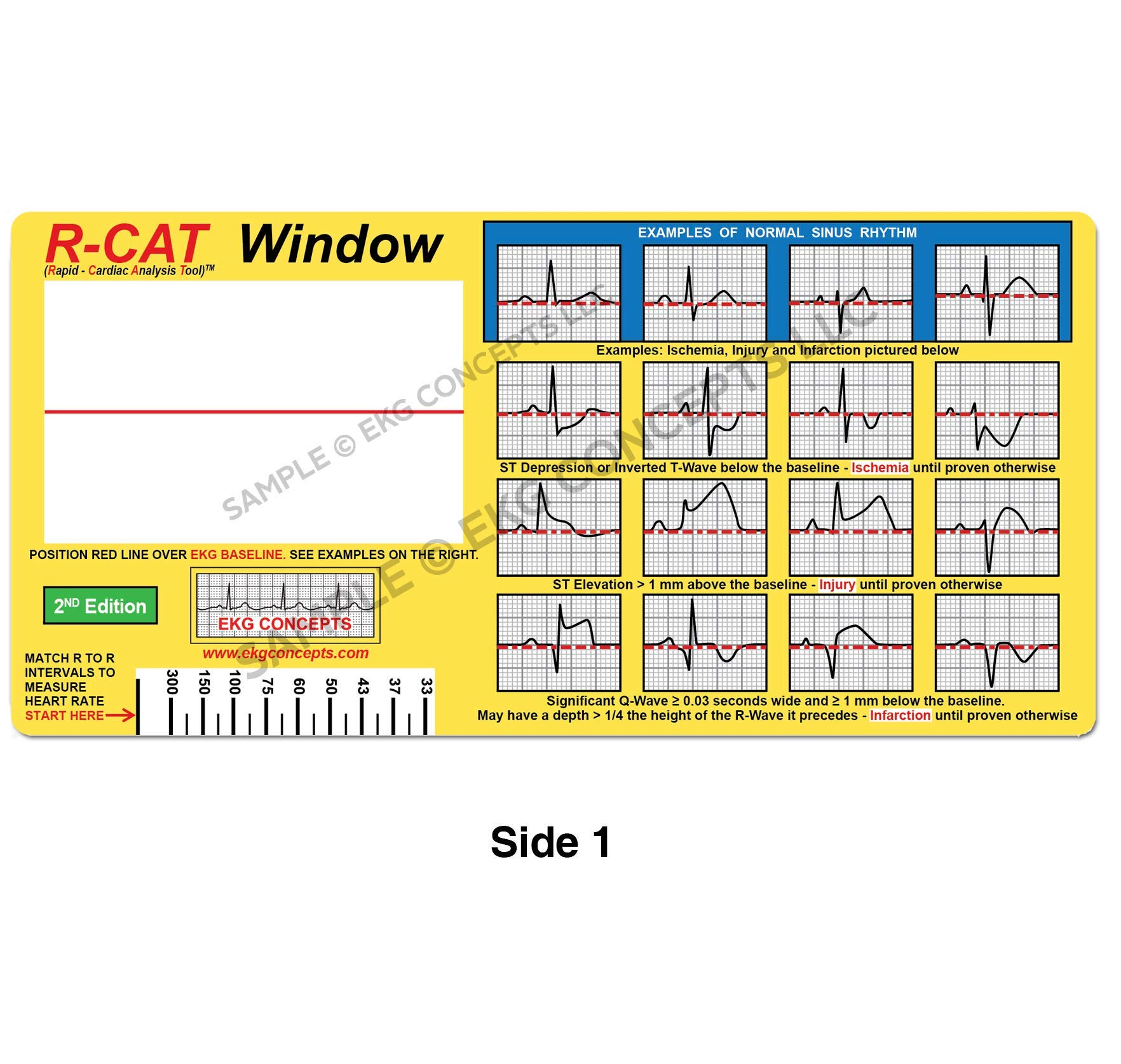 R-CAT EKG Window 2nd Edition by R-Cat