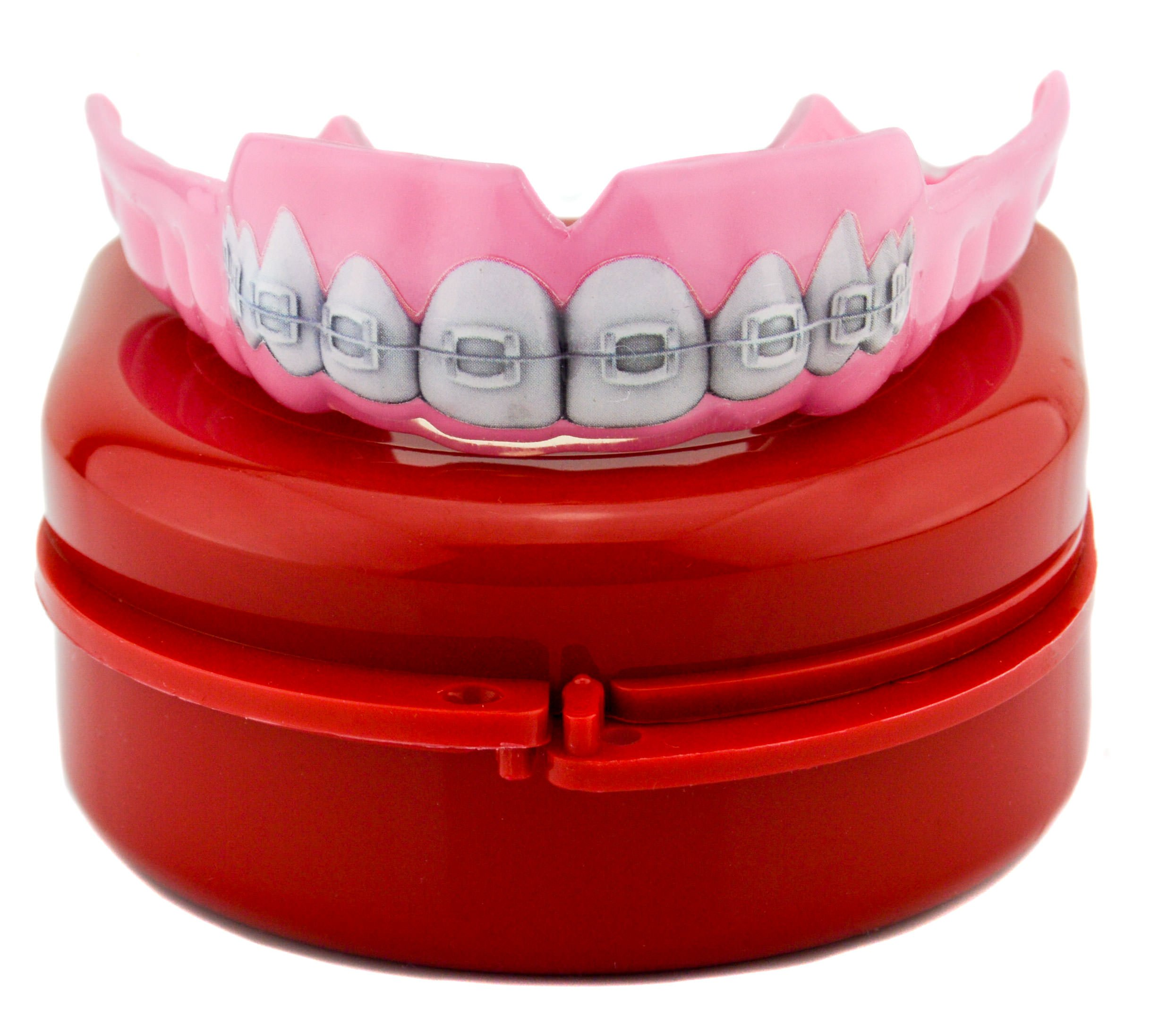 Impact Custom Professional 4mm Thin Profile Roller Derby Mouthguard Braces by Impact Custom Mouthguards