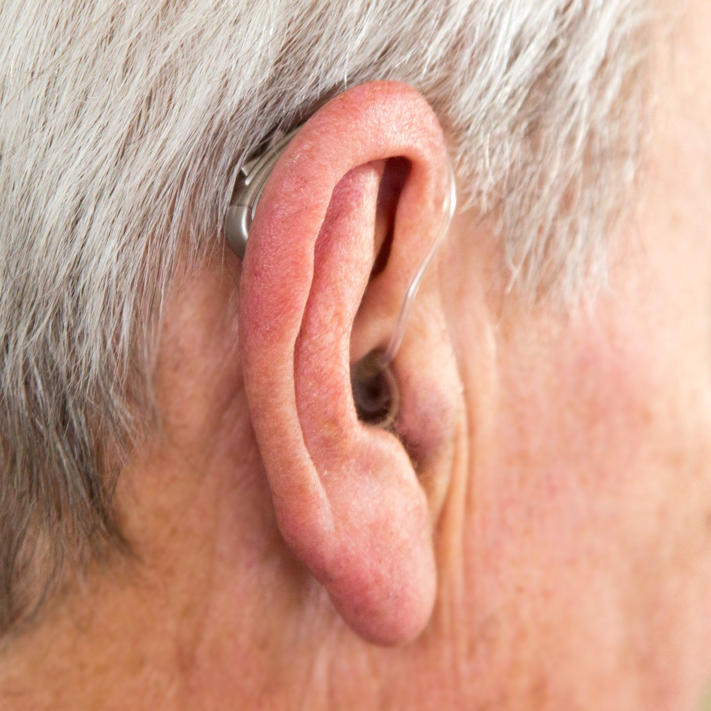 Amazon Otofonix Personal Sound Amplifiers Digital Hearing