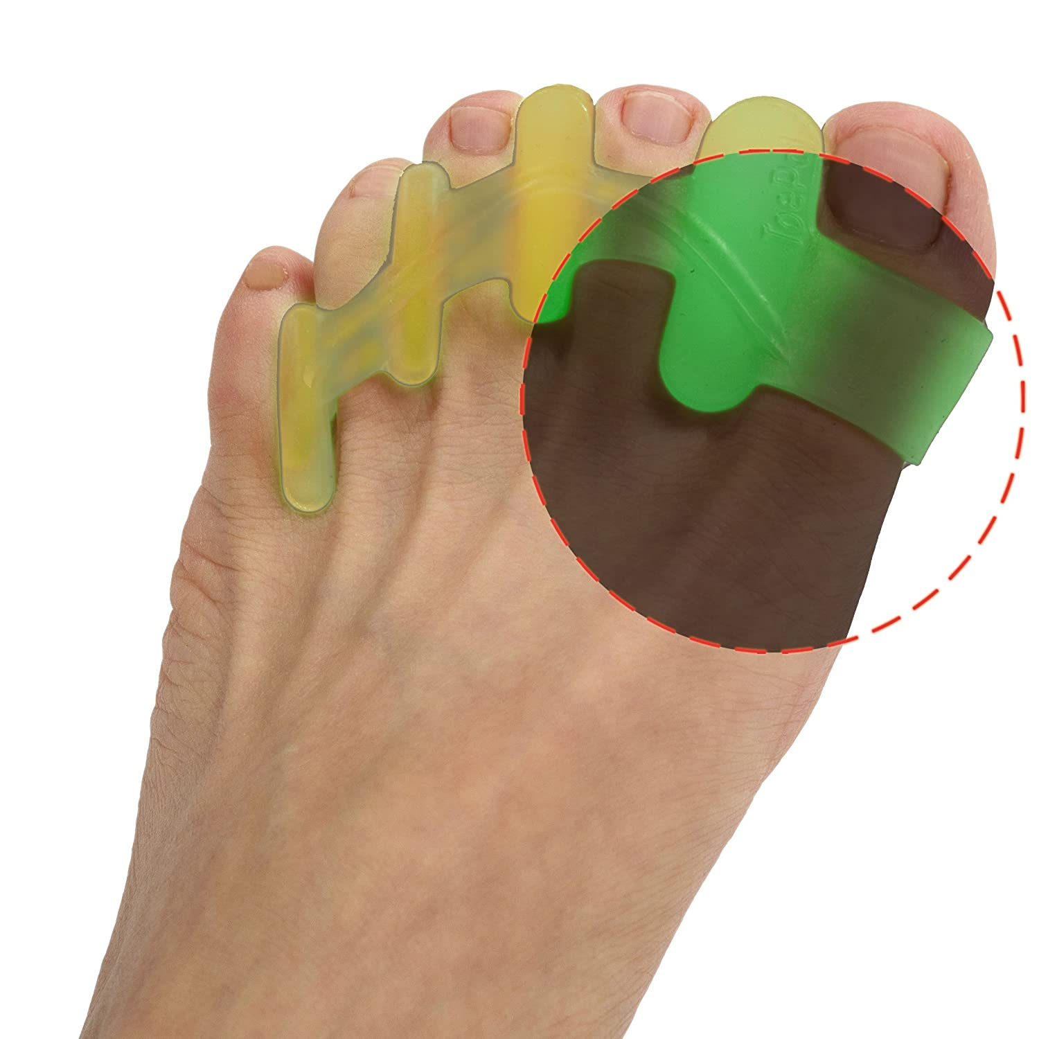 ToePal: Fluorescent Toe Separators and Gel Toe Spacers for Yoga, Toe Stretchers and Toe Straightener for...
