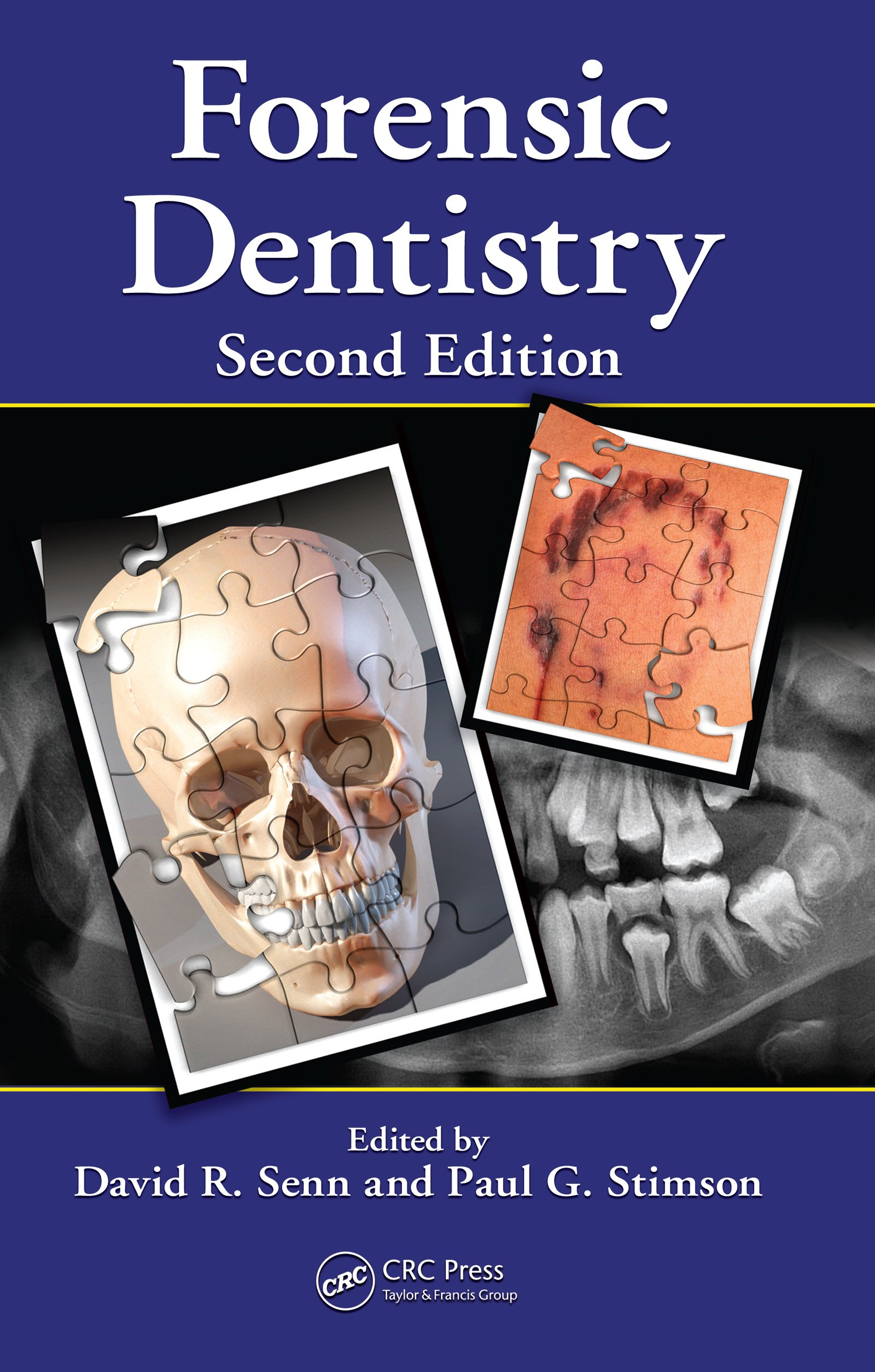 Forensic Dentistry Kindle Edition By Senn David R Stimson Paul G Politics Social Sciences Kindle Ebooks Amazon Com