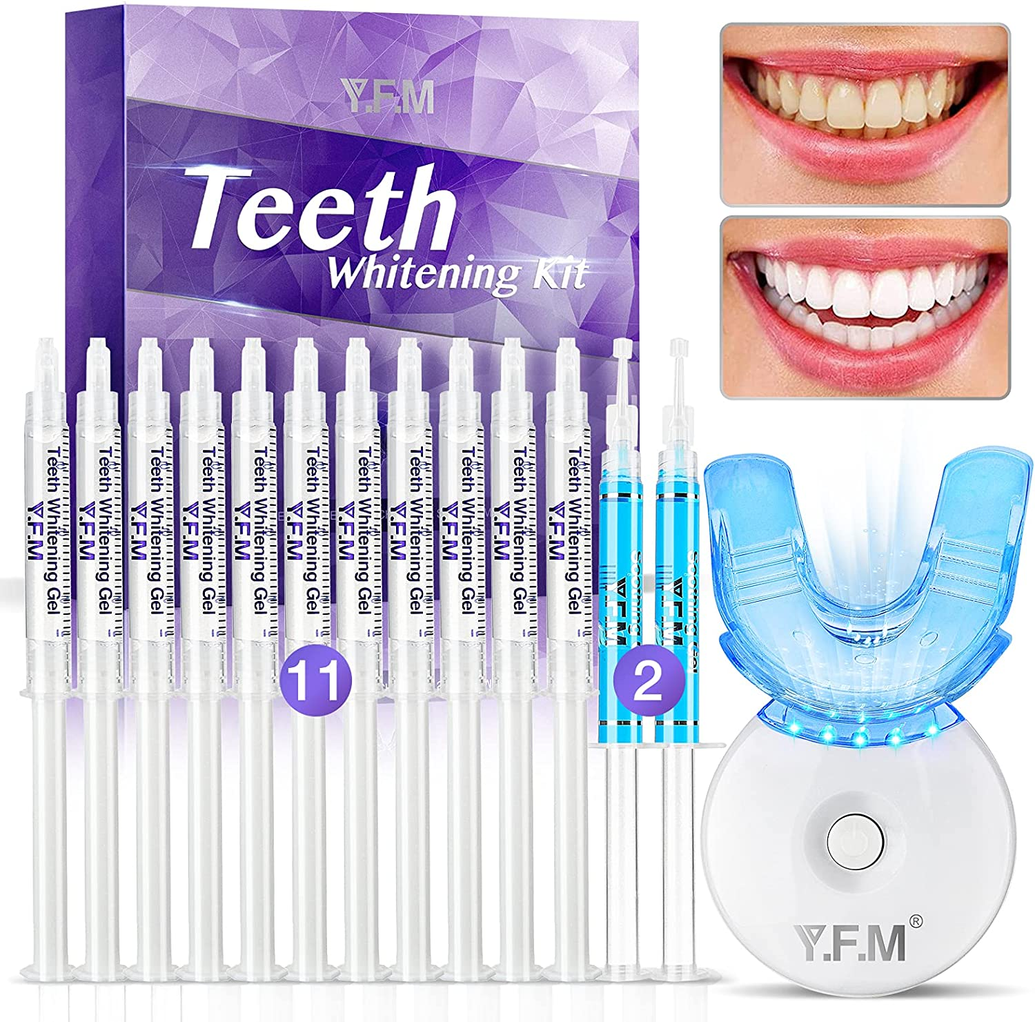 Teeth Whitening Kit, Y.F.M Professional Home Whitening Teeth Kit, 11pcs Teeth Whitening Gel, 2pcs Soothing Gel, 5X LED Light Tooth Whitener, 10 Min Non-Sensitive Fast Teeth Whitener: Health & Personal Care