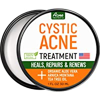 Cystic Acne Treatment and Acne Scar Remover - Made in USA - Effective Face & Body...