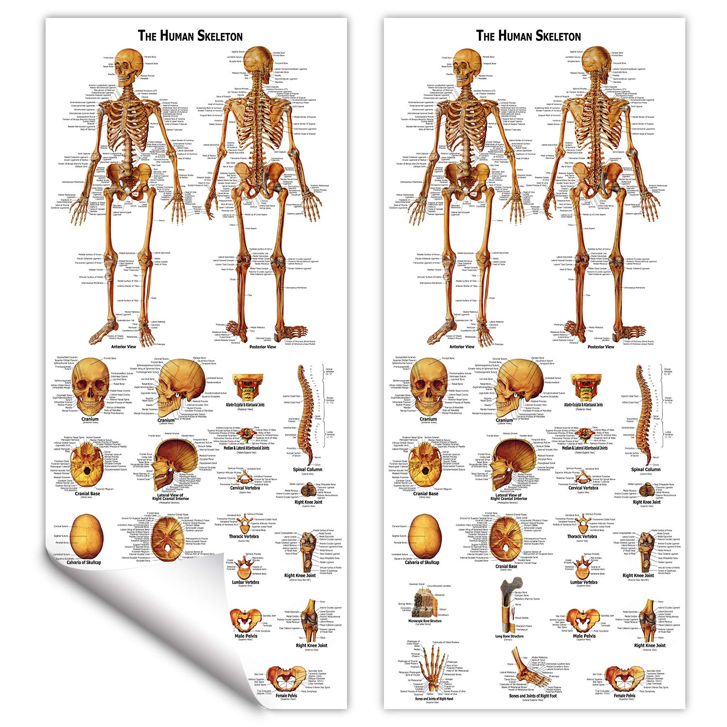 Poster Size 20 Width x 26 Height 3B Scientific VR2514L Glossy UV Resistant Laminated Paper Appareil Urinaire The Urinary Tract Anatomy and Physiology Chart, French Anatomie Et Physiologie Anatomical