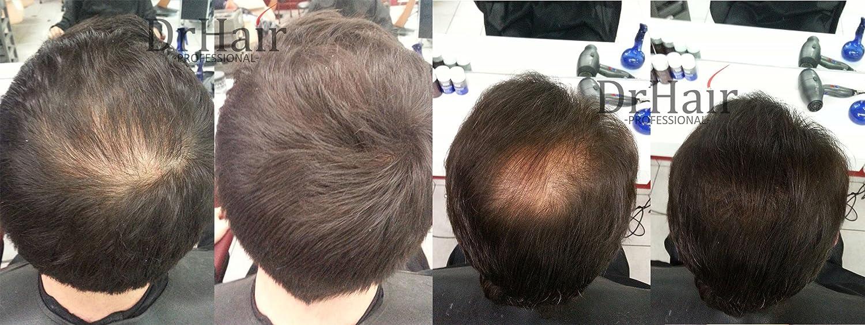 Dr Hair Fibers, Fibras de pelo, anti-caída del cabello, Queratina de pelo en pluma, Marrón Oscuro, 30g