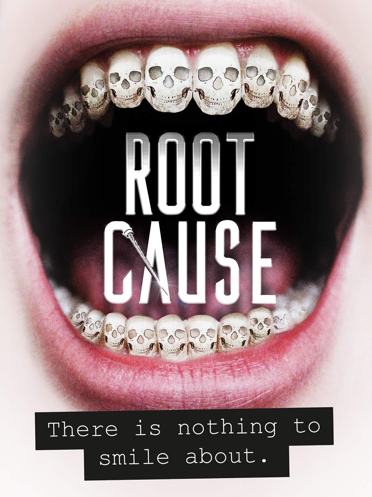 Amazon com: Root Cause: Ben Purser, Frazer Bailey, Justin Lyons
