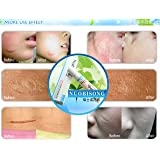 Nuobisong face care acne scar removal cream whitening face cream stretch mark