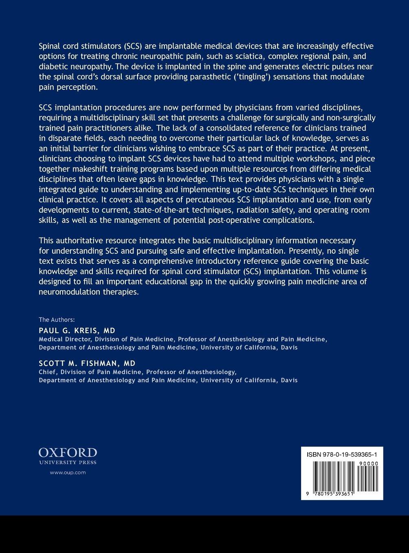 Spinal Cord Stimulation Implantation: Percutaneous Implantation Techniques by Oxford University Press