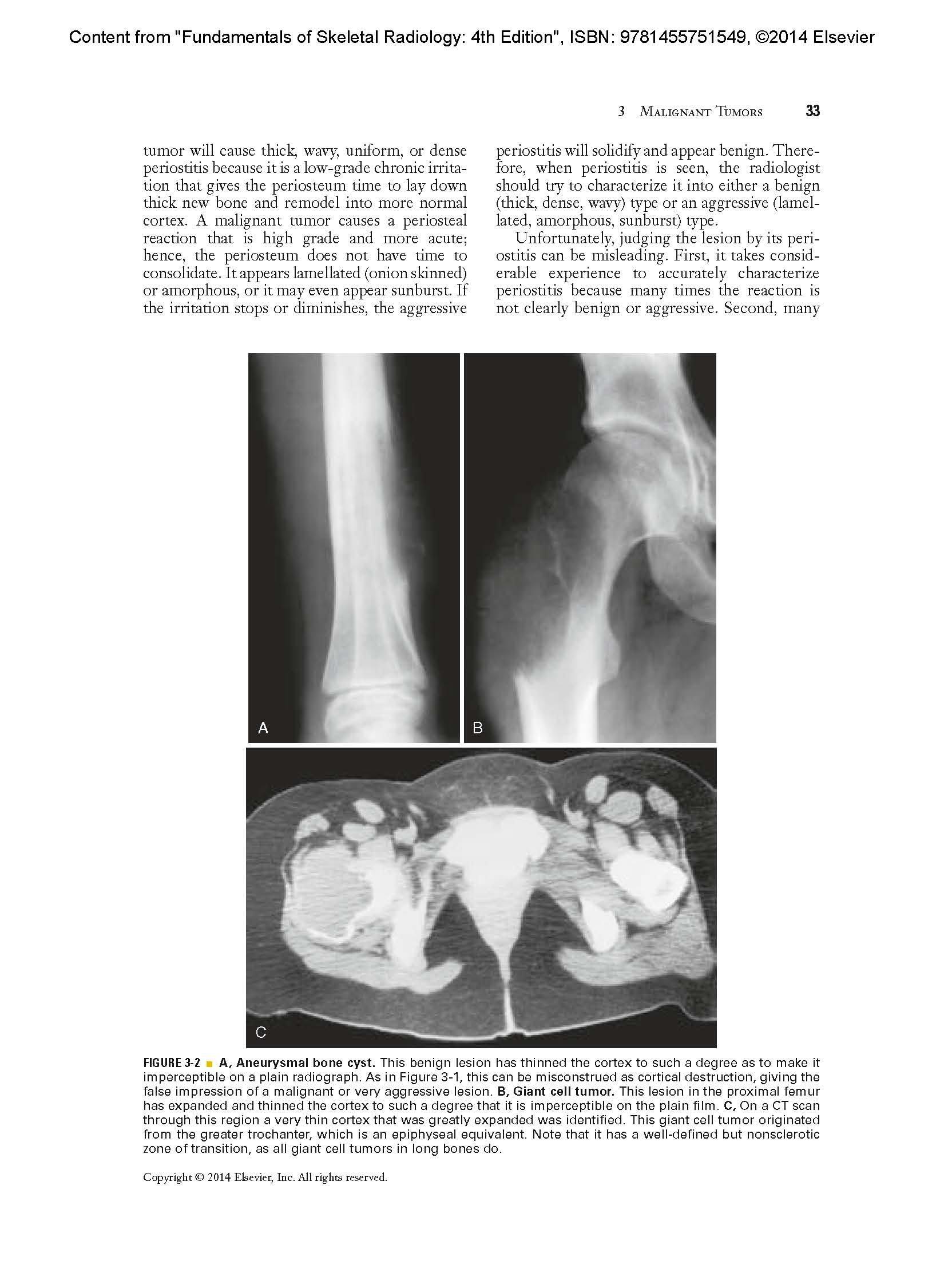 Fundamentals Of Skeletal Radiology Fundamentals Of Radiology Amazon