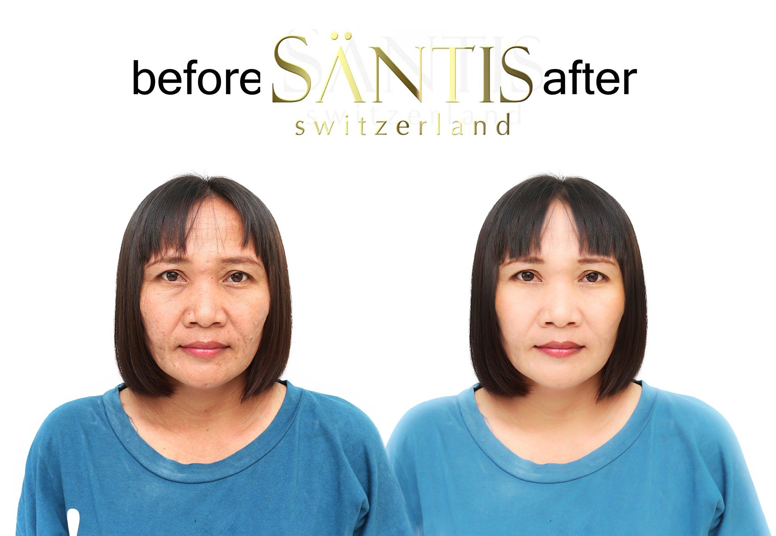 Santis Botox Alternative Anti Wrinkle Filler Kit Contain Cellular Serum & Filling Cream Tightens Skin Instantly & Painlessly - Eliminates Age Spots, Dark Circles, Smoothens Fine Lines by SANTIS SWITZERLAND (Image #4)