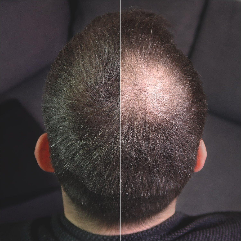 #benebeauty® Hair Building Fibers - densificación capilar - pelo en polvo - pelo espolvoreado - fibras capilares - 25 g; color: negro: Amazon.es: Belleza