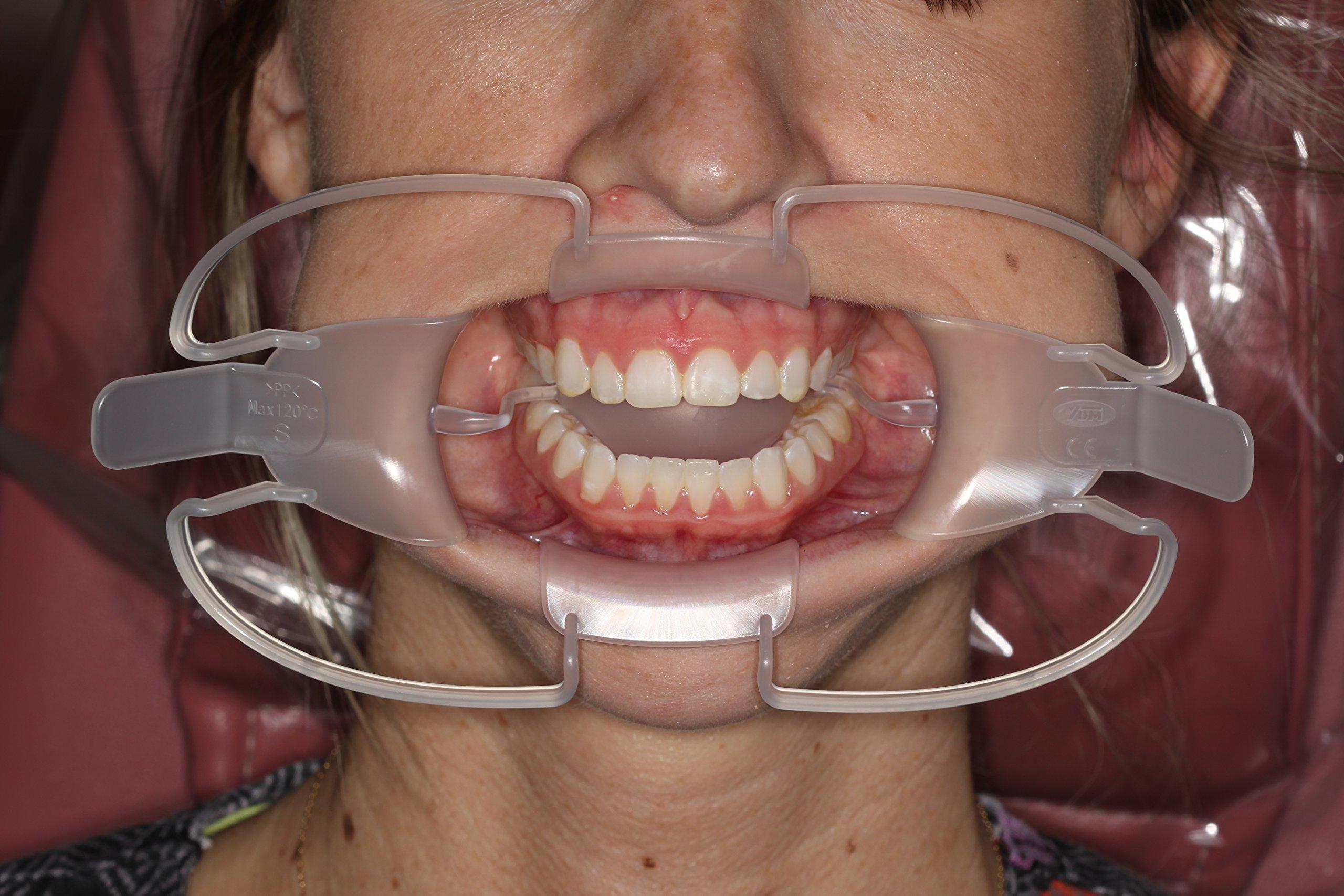 SeeMore Lip, Cheek and Tongue Retractors
