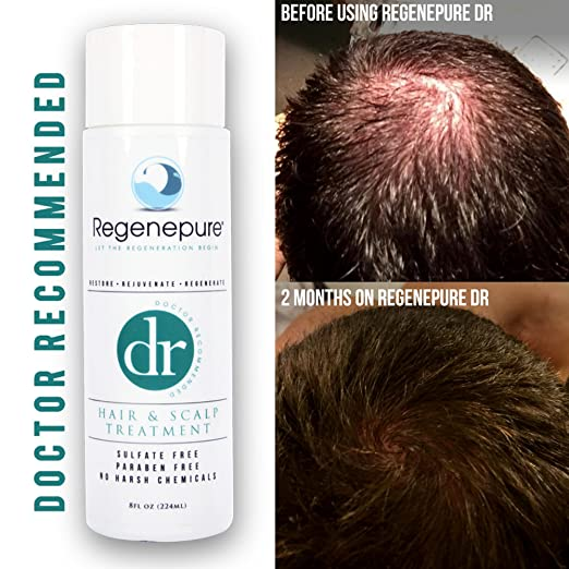 Regenepure - Hair Growth and Scalp Treatment - 8 Oz