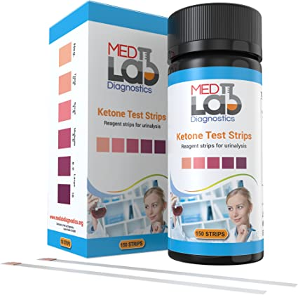 cetonas en orina a 8.0 en dieta cetosis