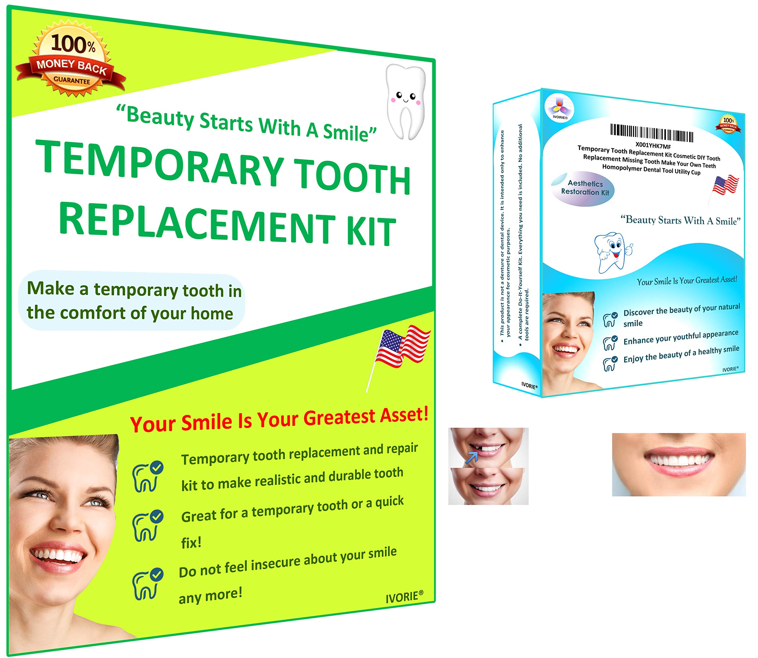 IVORIE Home Temporary Tooth Replacement Kit Cosmetic DIY Teeth Replacement Missing Tooth Make Your Own Teeth Smile Better by IVORIE