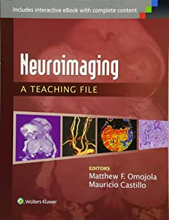 Ct mri of the abdomen and pelvis a teaching file lww teaching neuroimaging a teaching file lww teaching file series fandeluxe Choice Image