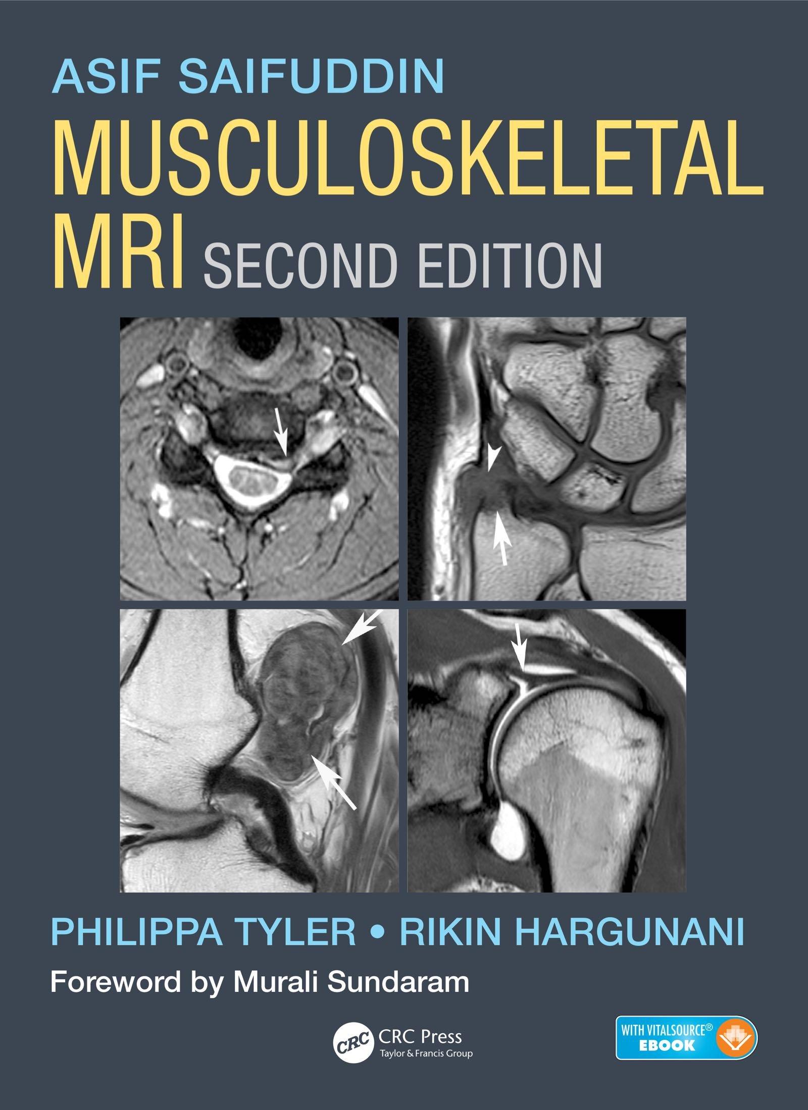 Musculoskeletal MRI  English Edition