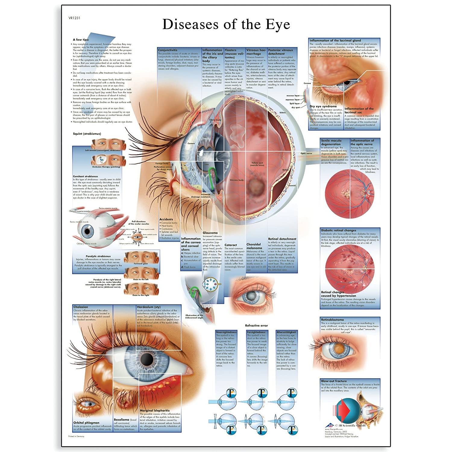 3B Scientific VR1231L Glossy Laminated Paper Diseases of The Eye Anatomical Chart, Poster Size 20' Width x 26' Height Poster Size 20 Width x 26 Height