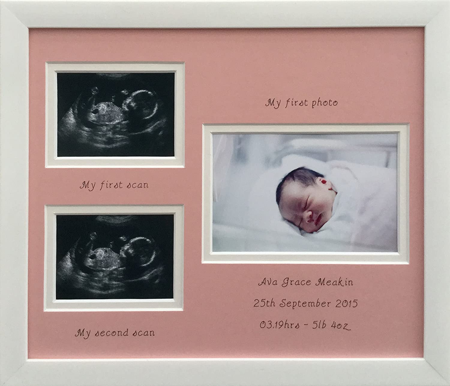 Two Sonogram Scans Pink Mount Girl Name Birth Photo Frame 12 x 10