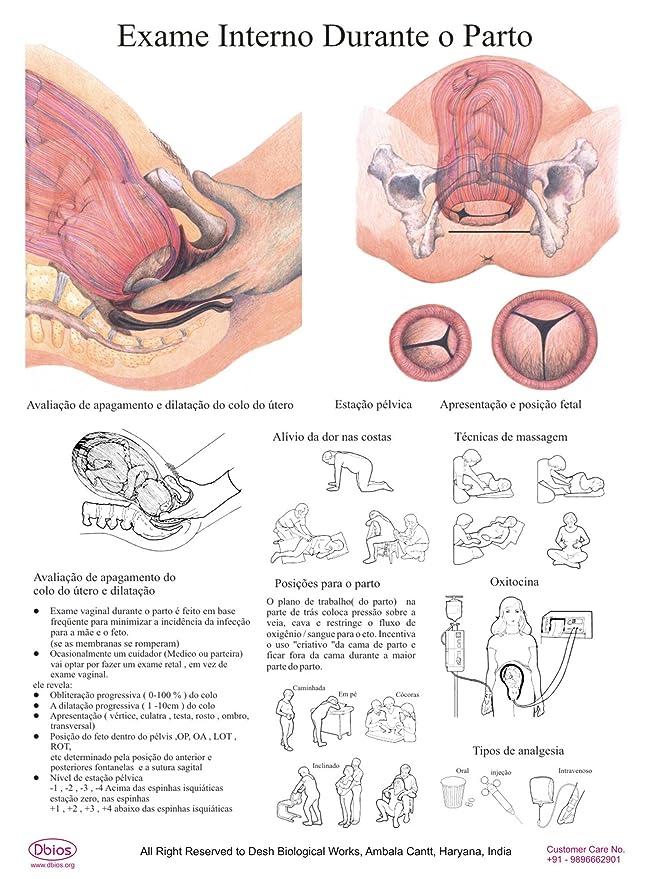 3587b8211 Amazon.com : Dbios Digitally Printed Biology Exame Interno Durante O Parto  Laminated Poster Educational Wall Chart : Office Products